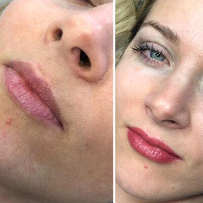 Lip-Blushing